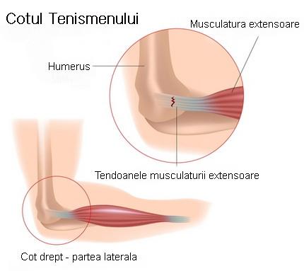 tratamentul epicondilitei laterale a articulației cotului cu unguent