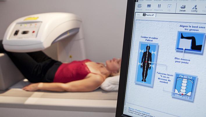 tratamentul osteoporozei articulațiilor