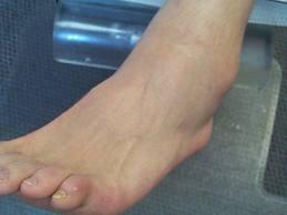 umflarea leziunilor gleznei remediu pentru dureri la vânătăi articulare